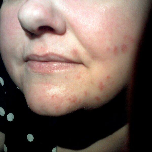 pollenallergi utslag i ansiktet