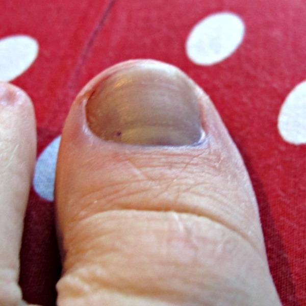 Klämd stortå nagel