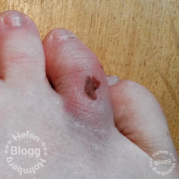 blåslagen och skrapad tå på höger fot