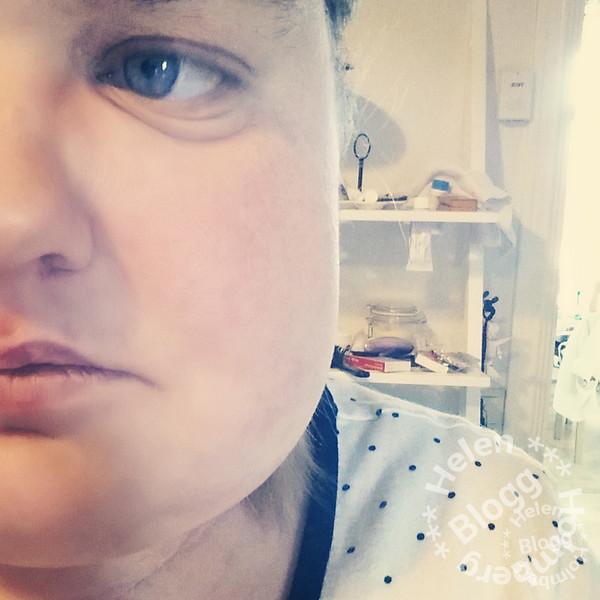 Bilder på blåmärken och svullnad efter visdomstand operation