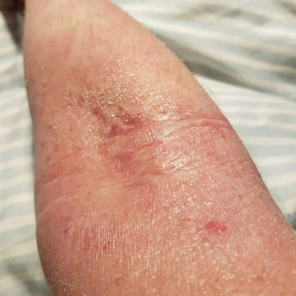Helen J Holmberg allergi och atopiskt eksem